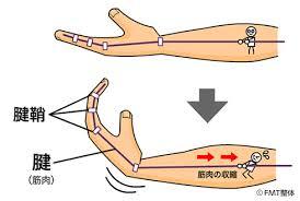 ゴルフ 腱鞘炎 指 手首 治療