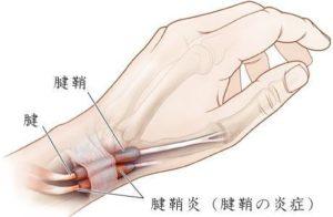 北国の恵み 腱鞘炎